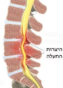 היצרות תעלת עמוד השדרה מותנית Lumbar spinal stenosis