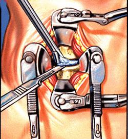 טיפול בדיסקופתיה צווארית
