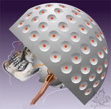 אדנומה של בלוטת יתרת המוח טיפול רדיוכירורגי 3