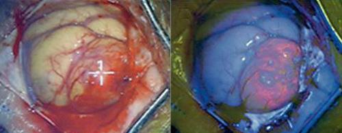 גליובלסטומה Glioblastoma multiforme GBM