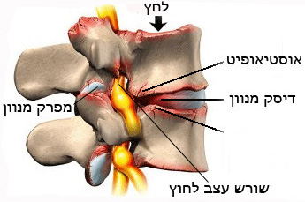 היצרות תעלת עמוד השדרה מותנית