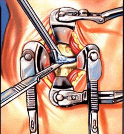 היצרות ספונדילוטית של תעלת עמוד השדרה הצווארי 4