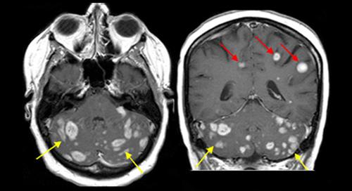 MRI חיוני במקרים של גרורה על מנת לאתר גרורות נוספות שלא נתגלו ב-CT