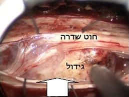 מנינגיומות של עמוד השדרה Spinal meningiomas
