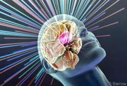 טיפול רדיוכירורגי נוירינומה של עצב השמע