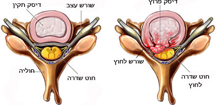 דיסקופתיה צווארית חתך עליון