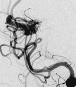 מום עורקי ורידי של המוח Arteriovenous malformation