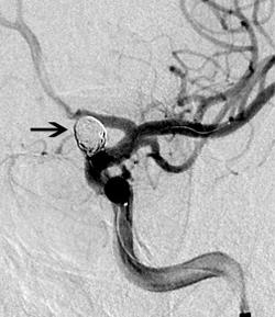 מפרצות של עורקי המוח Cerebral aneurysms