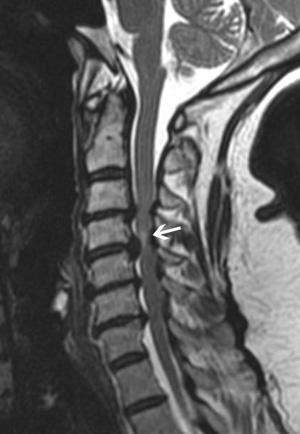 היצרות ספונדילוטית של תעלת עמוד השדרה הצווארי Cervical spondylotic myelopathy