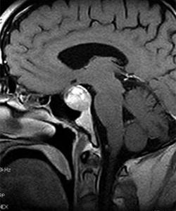 אדנומה של בלוטת יתרת המוח בבדיקת ה-MRI
