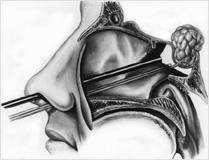 אדנומה של בלוטת יתרת המוח Pituitary adenoma